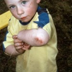 How To Protect Your Child From Pediatric Injuries?